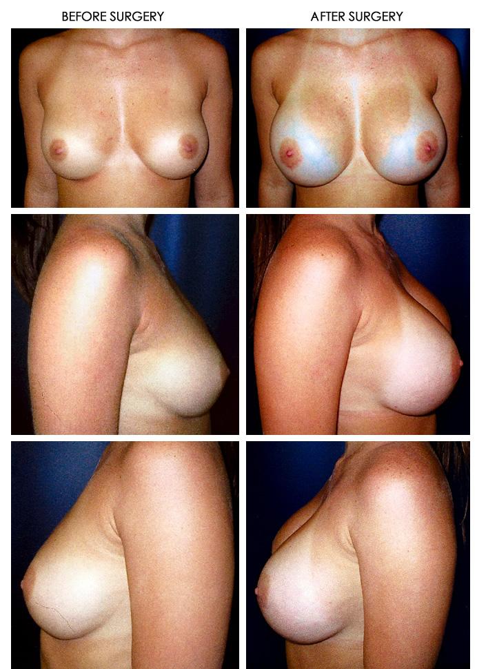 Plastic surgery depresion breast