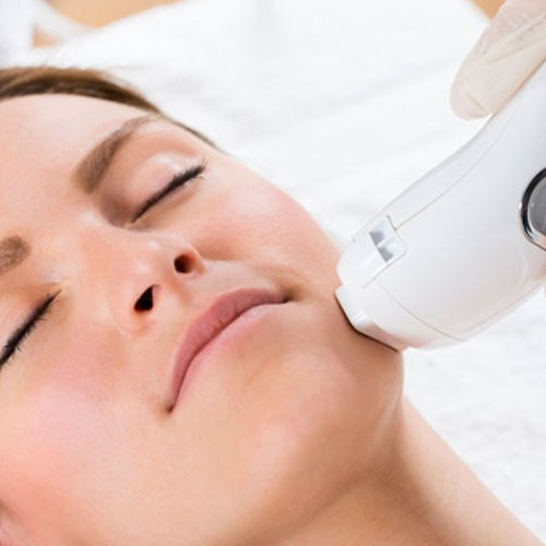 Laser Facials in Gainesville FL